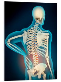 Acrylic print  Inflammation in human back area - Stocktrek Images