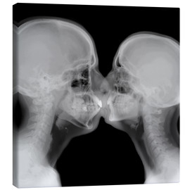 Canvas  X-ray of a couple kissing - PhotoStock-Israel
