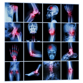 Acrylic glass  Human joint, arthritis and stroke