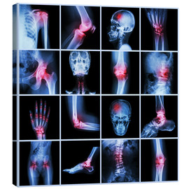 Canvas print  Human joint, arthritis and stroke