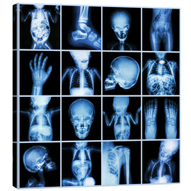 Canvas print  Xrays of a child body